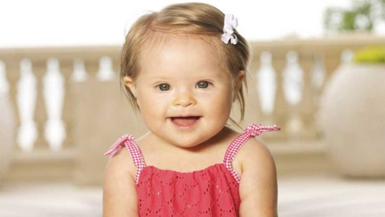 Down Syndrome Abortion